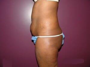 san diego tummy tuck - patient before photos