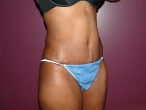 san diego tummy tuck - patient after photos