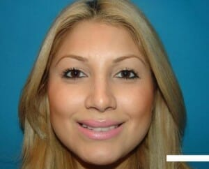 rhinoplasty san diego - patient after