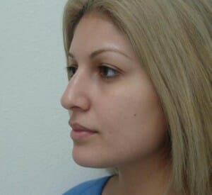 rhinoplasty before - Jaibaji Plastic Surgery Coronado
