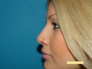 rhinoplasty after - Jaibaji Plastic Surgery San Diego
