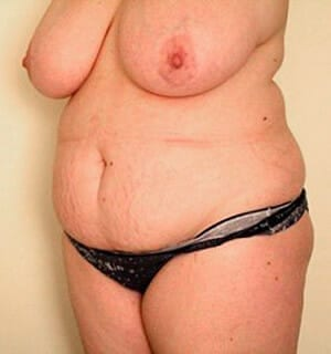 sa diego tummy tuck surgery - patient before photo