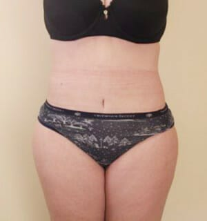 patient results after tummy tuck surgery