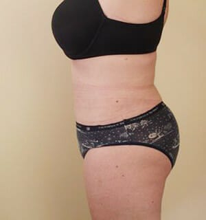 sa diego tummy tuck surgery - patient after photo