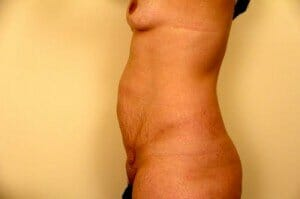san diego tummy tuck with breast augmentation- patient before photos