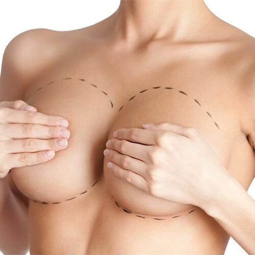 Breast augmentation San Diego, CA | Jaibaji Plastic Surgery