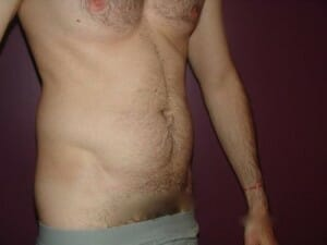 Stomach liposuction for men