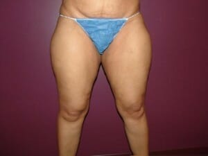 san diego liposuction inner thighs | Jaibaji Plastic Surgery