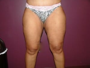 san diego liposuction outer thighs | Jaibaji Plastic Surgery