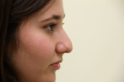 rhinoplasty before - Dr. Jaibaji - Plastic Surgery San Diego