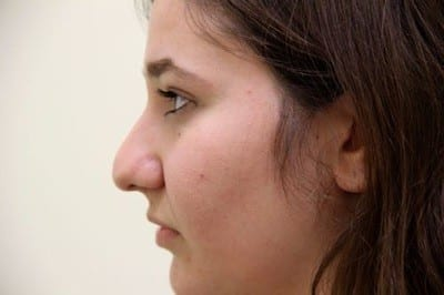 rhinoplasty before - Dr. Jaibaji - San Diego Plastic Surgery