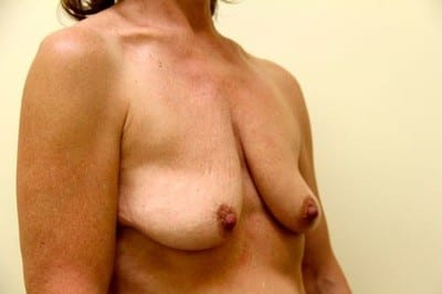 breast-lift-33