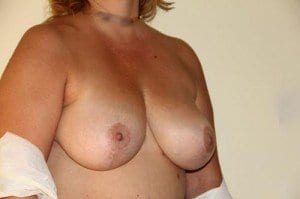 breast-lift-58