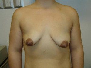 breast-lift-61