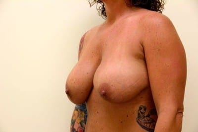 XL breast augmentation 1200 cc