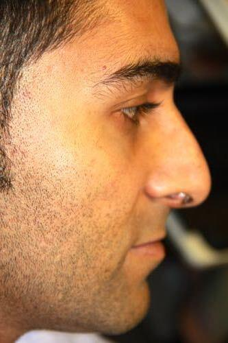Rhinoplasty for men San Diego