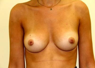Retracted nipple surgery San Diego