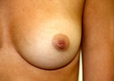 Inverted nipple surgery