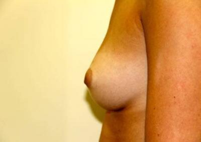 Inverted nipple surgery San Diego