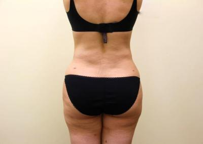 Liposuction San Diego and Coronado