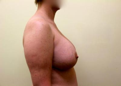 Extra large breast enhancement