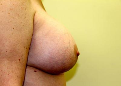Breast augmentation with extra large implants
