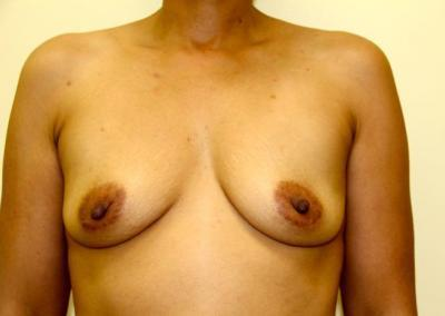 Breast augmentation with Silicone implants 350 cc