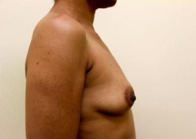Breast augmentation with silicone implant 350 cc