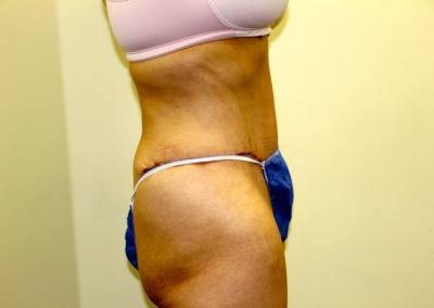 Extended tummy tuck
