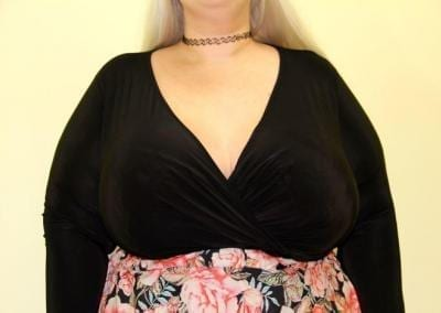 XL Breast augmentation