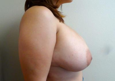 Breast reduction and Asymmetry correction