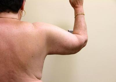 Arm lift and liposuction
