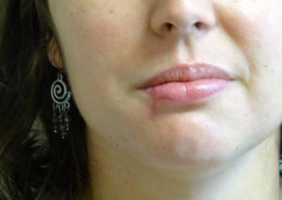 Lower lip cancer right side. Three months after surgery